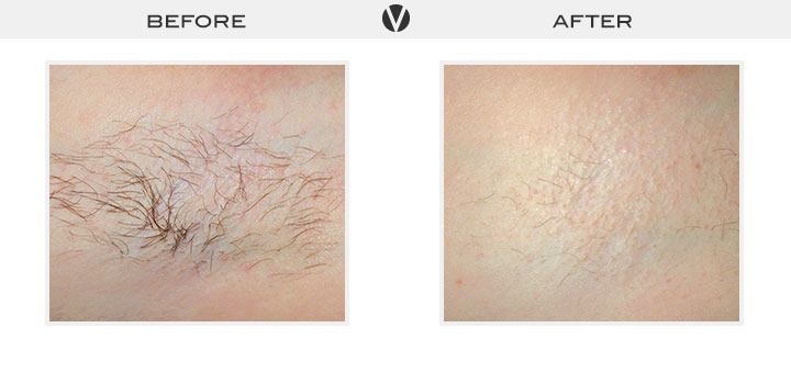 Before_After_LaserHairRemoval