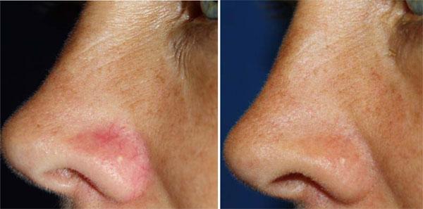 cutera-telangiectasia-nose
