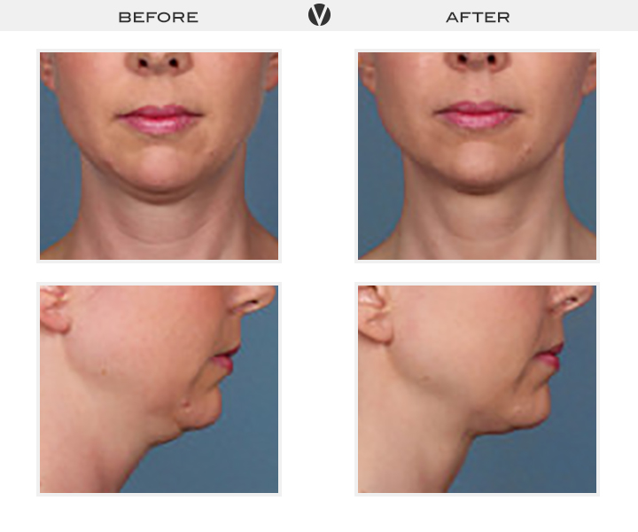 Before_After2_Patient1