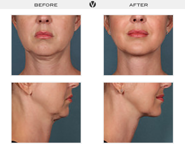 Before_After2_Patient2