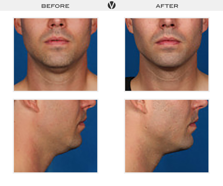 Before_After2_Patient3