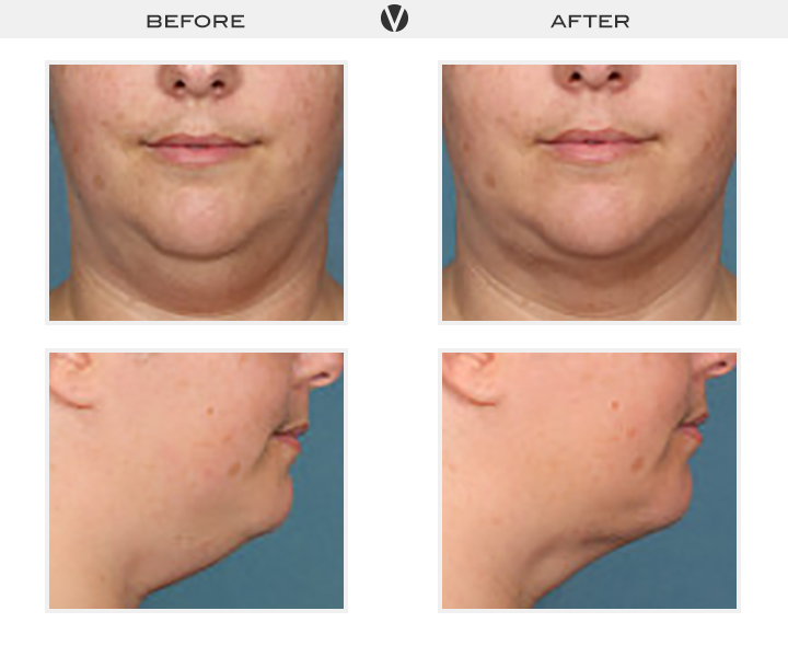Before_After2_Patient5