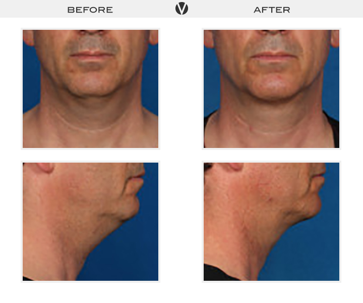 Before_After2_Patient8