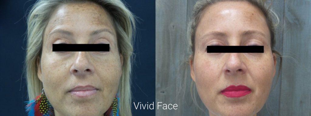 vivid-facial-results1
