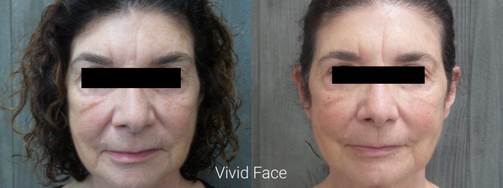 vivid-facial-results2
